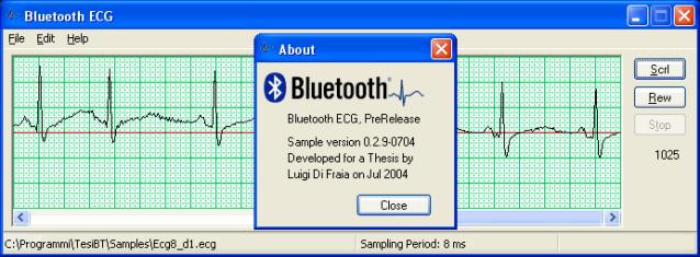 Bluetooth ECG by Luigi Di Fraia
